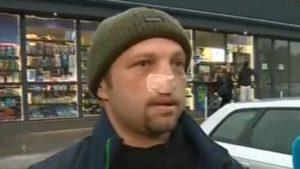 Пешеходец отхапа носа на шофьор заради скандал на пътя