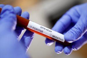 Затвориха ясла в Кнежа зарази положителна проба за коронавирус