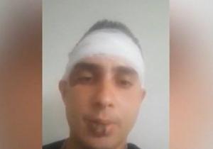 Пребиха жестоко музикант от ботевградско село след като изфорсирал колата си
