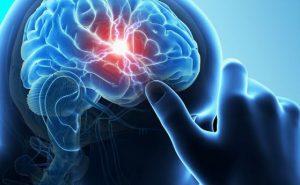 Коронавирусът може да предизвика масивен инсулт