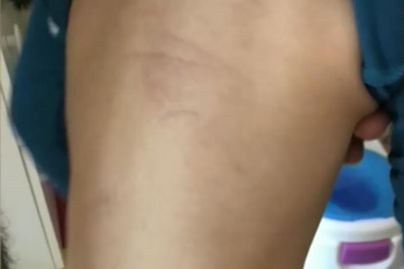 След първия ден на ясла: Дете се прибра със синини от удари по тялото